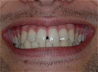 teeth before procedures: correct sleep apnea, headaches, migranes, bruxing and tmj problems